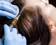 Мезотерапия волос в Москве 2
