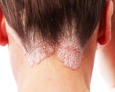 Атопический дерматит и псориаз кожи головы в Москве