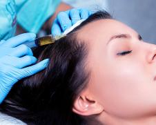 Биоревитализация волос в Москве