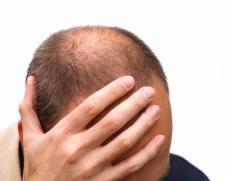 Лечение облысения у мужчин в Москве